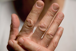 psoriasis-arthritis-hands-300x200
